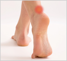How to treat Heel Pain and Achilles Tendinitis