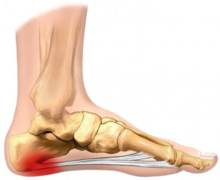 What causes heel pain and plantar fasciitis?