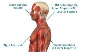 How Can Your Posture Affect Your Shoulder Pain?